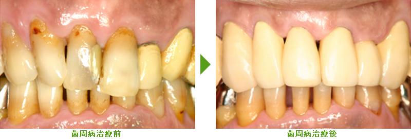 歯周病治療症例紹介